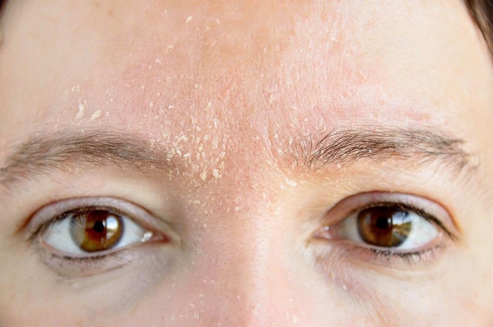Hautkrankheiten behandeln